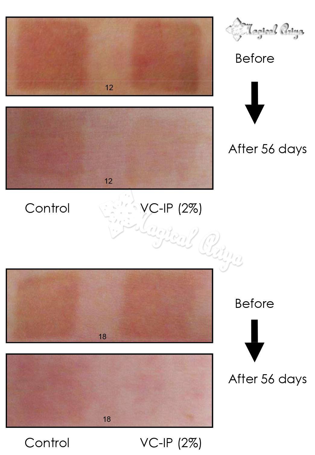 Витамин С - VC IP    UU5Untitled-1